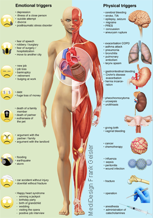 Grafikdesign Poster Broken Heart Syndrom, Stress Kardiomyopathie