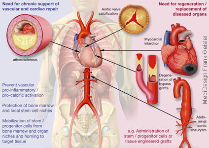 Grafikdesign Poster Kardiologie Herzerkrankung Arteriosklerose Herzinfarkt