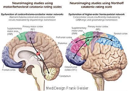 Grafikdesign Poster Neurologie Psychiatrie Katatonie Schizophrenie