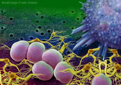 Illustration Abszess durch Infektion mit Staphylococcus aureus
