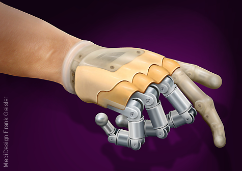 Illustration Bionik in der Medizin, Prothese Handprothese der Hand