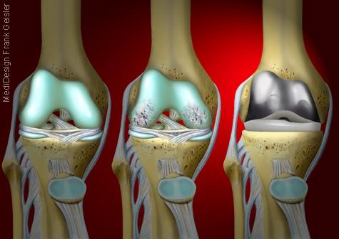 Illustration Kniegelenk Arthrose Kniearthrose TEP