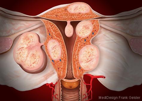 Illustration Uterus myomatosus Gebärmutter Frau
