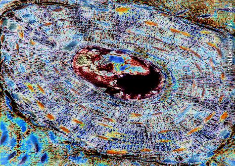 Medical Art Bild Histologie Knochenzellen Knochen