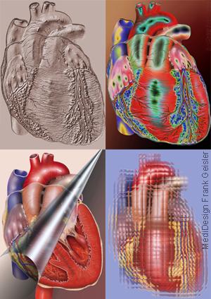 Medical Art Kardiologie, menschliches Herz von Frank Geisler