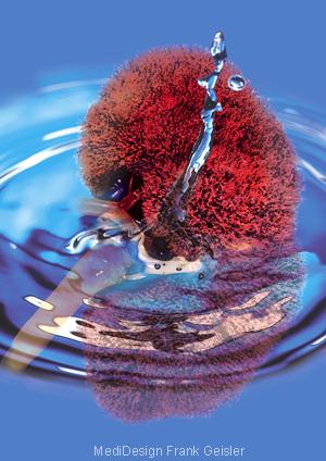 Medical Art Bild Physiologie Dialyse Nieren