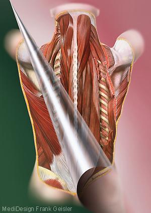 Medical Art Bild Rücken Muskeln Rückenmuskulatur