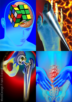 Medical Art Bild Neurologie ZNS Schmerzen Orthopädie Arthrose