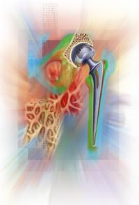 Medical Art Bild Hüftgelenk Orthopädie