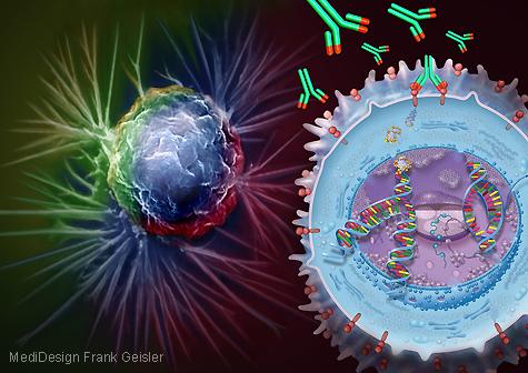 Medizingrafik Therapie Krebs Brustkrebs mit Herceptin